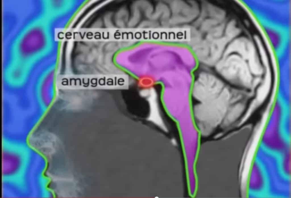 décisions émotionnelles raisons rationnelles : le rôle de l'amygdale (cerveau)